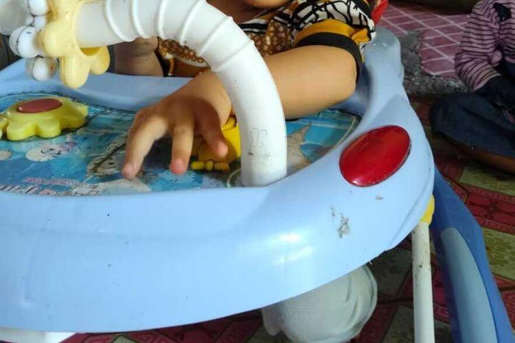 Bayi lucu bernama Piola Juningsih yang berusia delapan bulan ini lahir tanpa anus, di Desa Sialang Dua Dahan, Kecamatan Rengat Barat, Kabupaten Indragiri Hulu, Provinsi Riau. Piola kini butuh pertolongan untuk mengatasi atresia ani yang dialaminya.