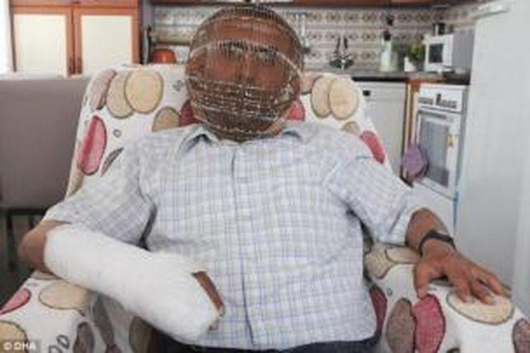 Ibrahim Yucel (42), pria Turki yang memilih mengenakan kurungan kepala untuk membantunya berhenti merokok.