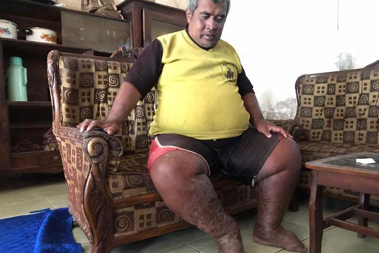 Saepudin (48 tahun), korban gigitan ular kobra mengalami luka parah di kakinya.