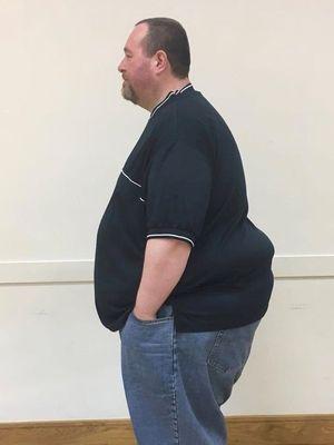 Phil Kayes sebelum memulai perjalanan penurunan berat badan.