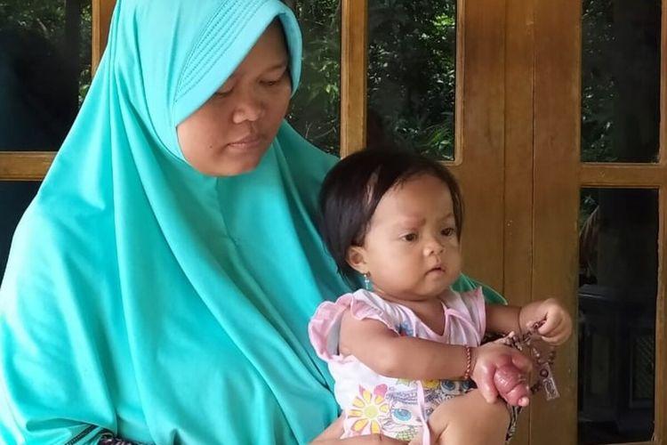 Etik Susilowati dan anaknya Samara Kumaira Mariba yang jari tangan kanannya mengalami bengkak setelah digigit kutu kucing di Sragen, Jawa Tengah.
