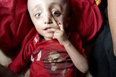 Ayo Bantu Arif, Bocah yang Alami Hidrosefalus dan Ditinggalkan Kedua Orangtuanya
