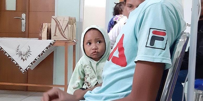 Seorang balita di NTT penderita bibir sumbing tengah menjalani proses pengobatan di St. Carolus Borromeus Kupang