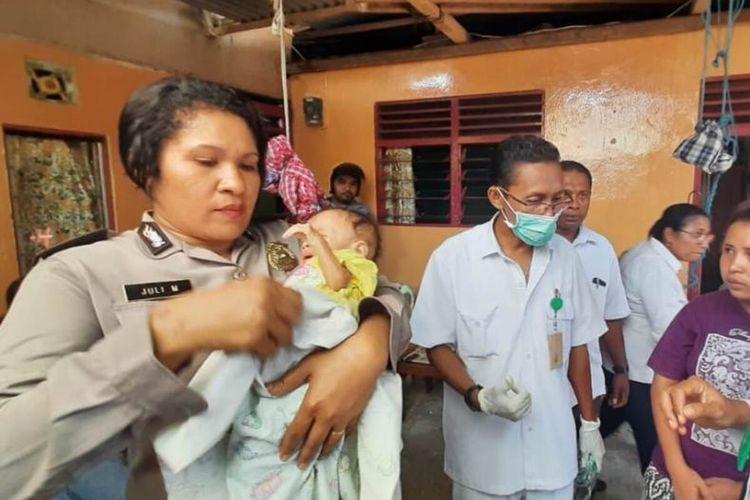 Helena bayi penderita gizi buruk yang juga mengidap kanker meninggal dunia setelah menjalani perawatan di rumah sakit dr Haulussy Ambon, Selasa (4/2/2020)