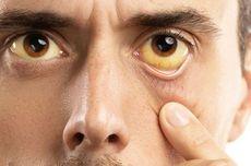 7 Penyebab Penyakit Kuning yang Bisa Terjadi
