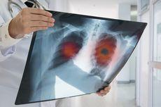 Ini Beda Kondisi Paru-paru Perokok dan Paru-paru Sehat