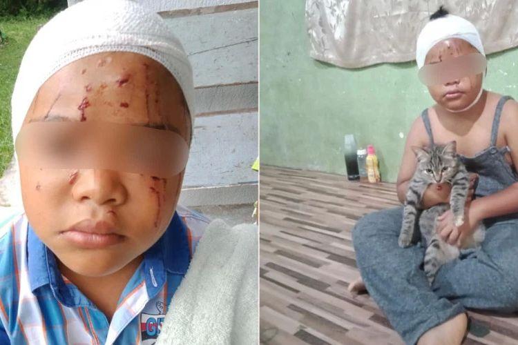 Seorang bocah di Malaysia tetap menyanyangi kucing peliharaannya meski mukanya dipenuhi cakaran kucing.