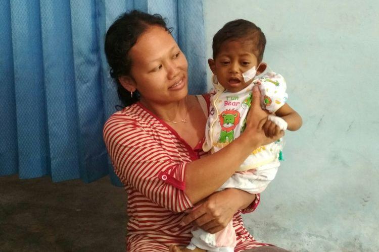 Davino (18 bulan) penderita kelainan hati digendong ibunya, Rabu (19/7/2017). Davino membutuhkan cangkok organ hati senilai Rp 1,3 miliar agar bisa sembuh.