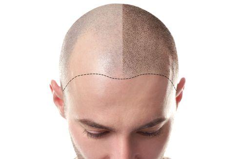 LG Ciptakan Helm Penumbuh Rambut untuk Atasi Kebotakan
