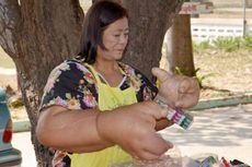 Penyakit Aneh, Tangan Wanita Ini Seberat 9,5 Kg