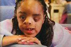 Cerita Bocah Perempuan Buruk Rupa, Berjuang dalam Perbedaan...