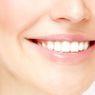 Berapa Biaya Veneer Gigi untuk Senyum yang Cantik