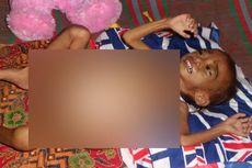 Rifa, Bocah dengan Tumor di Perut Meninggal Dunia di RSCM