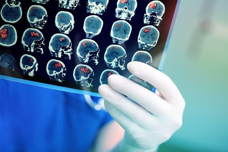 Ilustrasi tumor otak