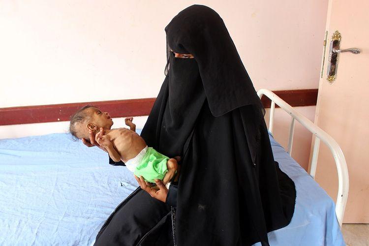 Seorang ibu di Yaman menggendong bayi perempuannya yang menderita kekurangan gizi di sebuah klinik di provinsi Hajjah utara Yaman pada 18 Desember 2019.  Perang yang telah melanda Yaman telah merenggut puluhan ribu nyawa, memicu malnutrisi yang meluas dan apa yang disebut PBB sebagai krisis kemanusiaan terburuk di dunia.