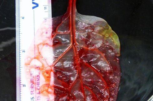 Terobosan Baru, Ilmuwan Sulap Daun Bayam Jadi Jaringan Jantung