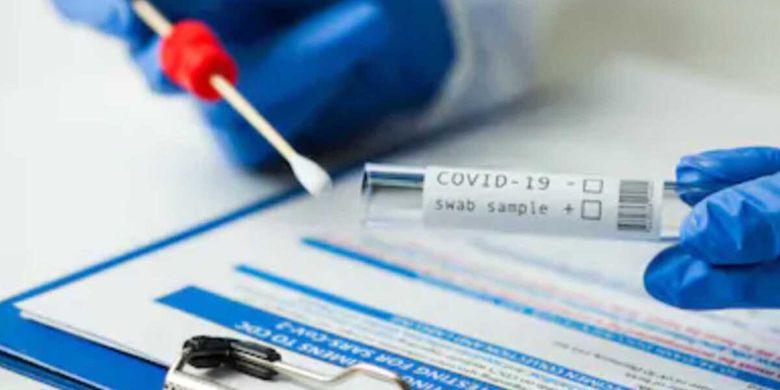 Bagaimana Bisa? BPKP: Harga Swab Antigen Sudah di Bawah Harga Acuan Tertinggi