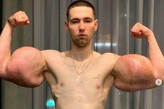 Suntik Otot Palsu agar Mirip Popeye, Pria Ini Menyesal Setelahnya