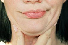 Badan Kurus Tapi Double Chin, Kenali Penyebabnya…