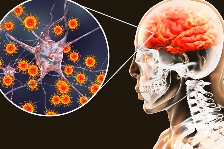 Ilustrasi radang otak, meningitis