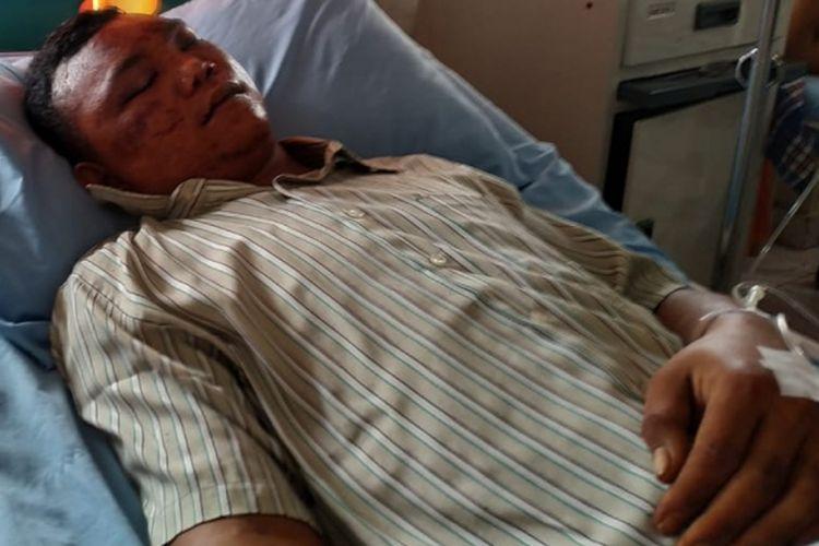 Harismail alias Ujang (25)korban salah tangkap oleh oknum Polisi saat menjalani perawatan di Rumah Sakit Bhayangkara Palembang, Sumatera Selatan, Minggu (24/2/2019).