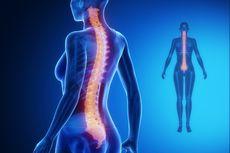 Mencegah Osteoporosis Itu Mudah, Ingat 3S untuk Perempuan Indonesia