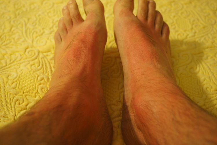 Ilustrasi ruam kaki.
