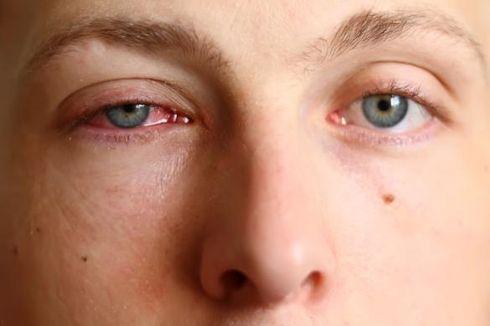 Covid-19 Menular Lewat Mata? Ini Kata Guru Besar UGM
