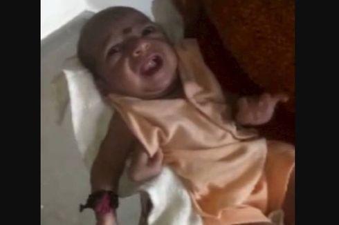 Terlahir Punya Tiga Tangan, Seorang Bayi di India Dipuja sebagai Dewa