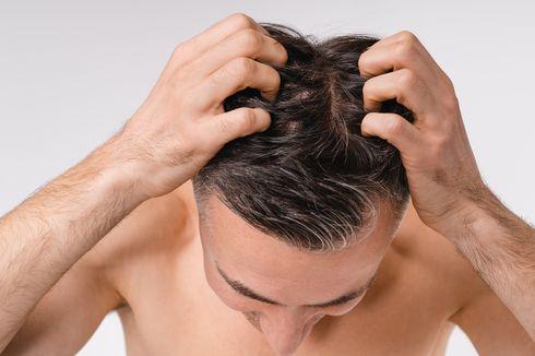 5 Pemicu Rasa Gatal di Kulit Kepala