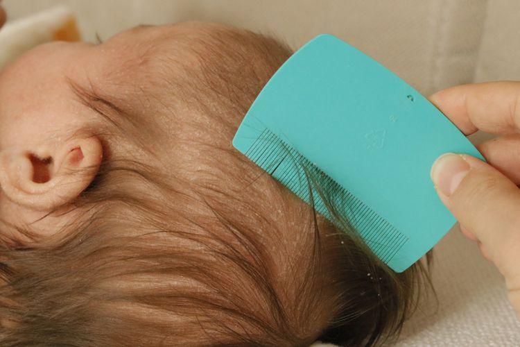 Ilustrasi kerak di kepala bayi