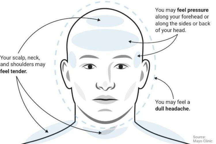 Ilustrasi sakit kepala tegang