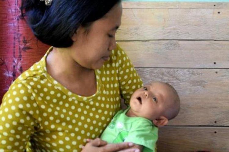 Seorang bayi yang masih berusia 5 bulan di Desa Mega Bahari, Kecamatan Lasalimu Selatan, Kabupaten Buton, Sulawesi Tenggara, didiagnosa terkena penyakit campak rubella. Akibat penyakit campak rubella ini,  kini bayi yang bernama Sidik Hendrawan, mengalami kebutaan katarak kongenital dan kelainan jantung.