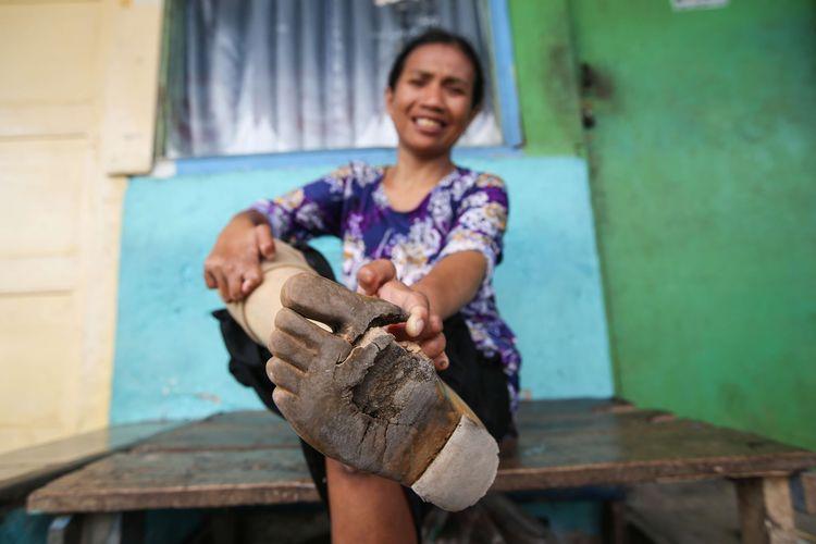 Juleha (34), eks penderita penyakit kusta menunjukkan kaki palsunya yang sudah rusak di Kampung Sitanala, Kelurahan Karangsari, Kecamatan Neglasari, Kota Tangerang, Banten, Selasa (20/8/2019). Di kampung yang berada di belakang RS dr. Sitanala ini dihuni sekitar 1000 eks penderita kusta dan keluarganya.