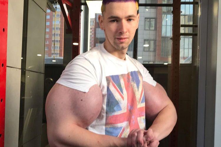 Kirill Tereshin, seorang Mantan tentara berusia 25 tahun, menggunakan petroleum jelly yang disuntikan ke bisepnya agar terlihat seperti pahlawan super.
