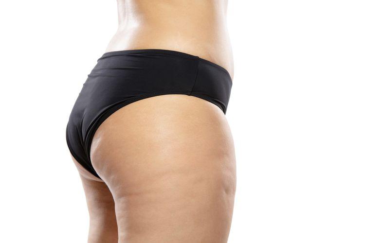 Cara mengecilkan paha dengan cepat memang dicari oleh banyak orang yang memiliki masalah dengan lemak paha. Sayangnya, kita tidak bisa menghilangkan lemak hanya di area paha atau satu area tubuh tertentu saja.