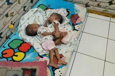 Kisah Rahman dan Rahim, Bayi Kembar Siam di Bekasi yang Menunggu Operasi