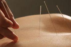 Akupuntur Terbukti Bisa Turunkan Berat Badan, Kok Bisa?