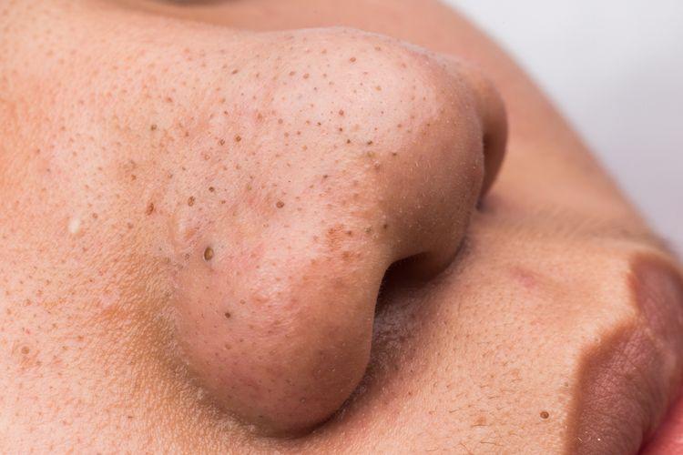 Cara menghilangkan komedo di hidung sangatlah bervariasi. Jadi, ketika menemukan komedo tumbuh permukaan kulit, jangan dulu khawatir.