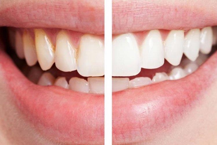 Ilustrasi memutihkan gigi