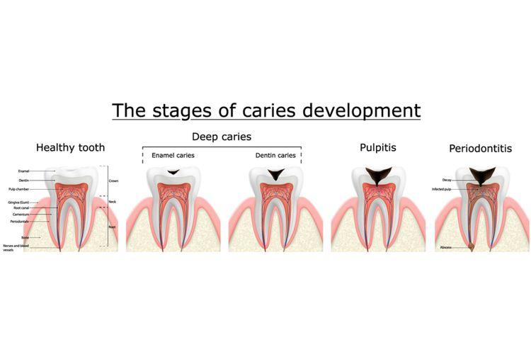 Ilustrasi tahapan karies gigi