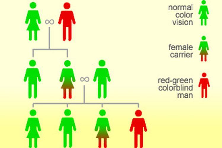 Pola pewarisan sifat buta warna, sifat tersebut akan diwariskan secara genetik melalui carrier yang membawa kromosom resesif.