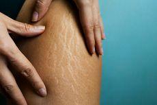 Mitos atau Fakta, Menggaruk Kulit saat Menstruasi Picu Stretch Mark