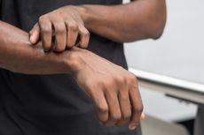 Sudah Sebulan, Warga Pulau Pramuka Terserang Penyakit Gatal-gatal