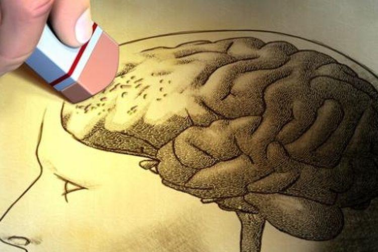Ilustrasi amnesia.