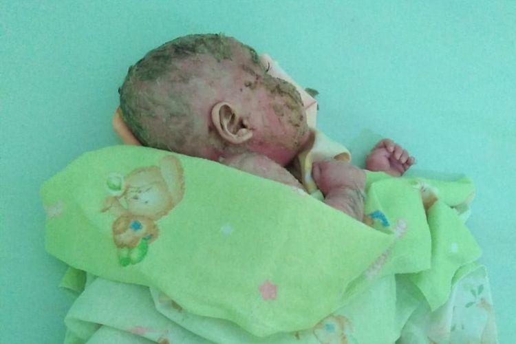 Mizyan Haziq Abdillah, bayi berusia 6 bulan dari wilayah perbatasan Kabupaten Nunukan ini menderita penyakit, kulitnya mengeras seperti plastik kemudian pecah dan mengelupas.(Dok. Istimewa)