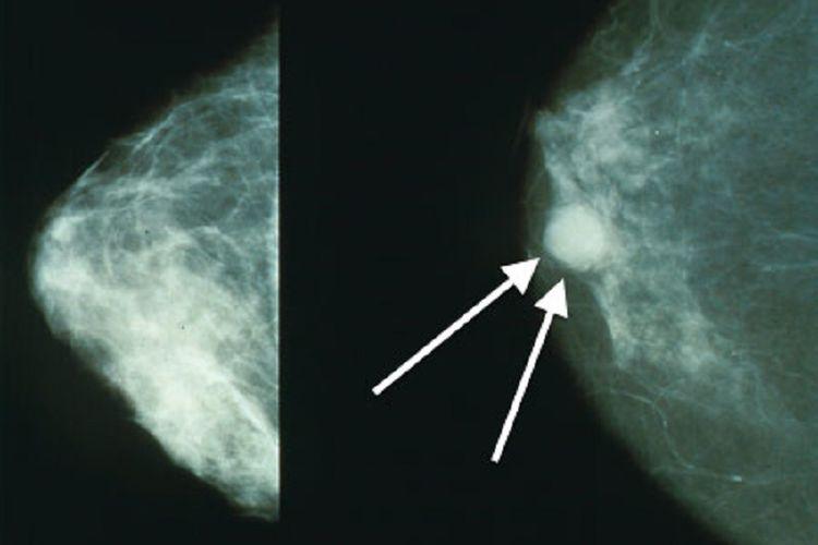 Citra tumor pada payudara dengan mamografi.