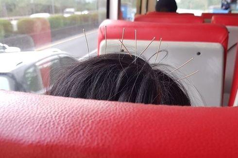 Foto Viral Tunjukkan Wanita Taiwan Naik Bus dengan 9 Jarum di Kepala