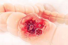 Gejala dan Penyebab Kanker Usus yang Perlu Diwaspadai
