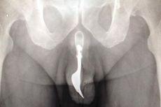 Petualangan Seks Gagal, Garpu 10 Cm Terjebak dalam Penis